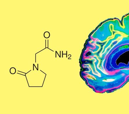 Ноотропы действие на организм